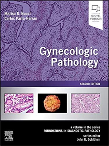 Gynecologic Pathology: A Volume in Foundations in Diagnostic Pathology Series 2nd Edition